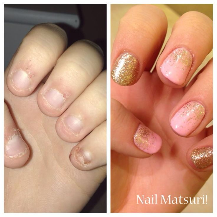 gel nails for short bitten nails - Google Search