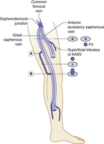 A diagrammatic representation of the saphenous compartments containing the great saphenous vein (GSV) and anterior accessory saphenous vein (AASV). In this example a large incompetent tributary inserts to an incompetent GSV in the mid-thigh (A), with the GSV becoming small and competent beyond this point. The tributary communicates with the main trunk lower in the thigh (B), where the GSV becomes incompetent once more. Alternatively, the large tributary could continue to run down the leg…