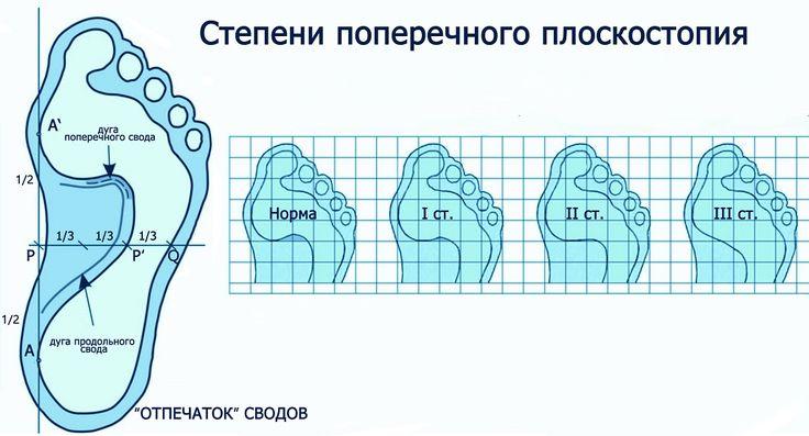 Плоскостопие - коррекция чрезвычайно эффективны, если применять индивидуальные ортопедические стельки-балансеры Антона Броварника.