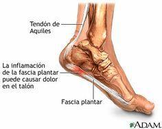 Te duele el talon o la planta del pie? Mira lo que tenes.