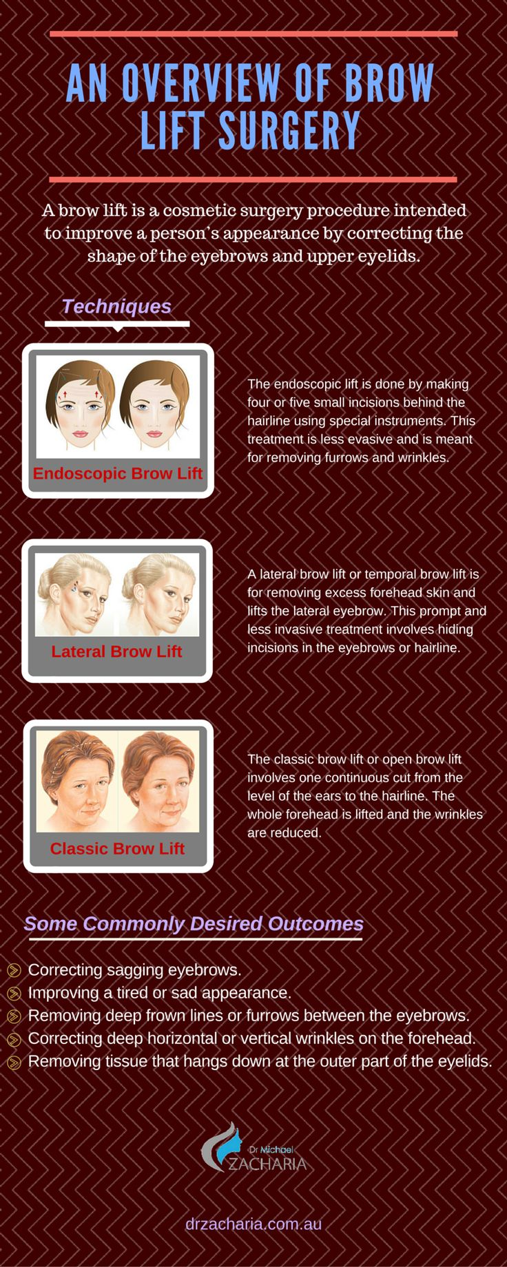 A brow lift surgery is meant for improving the shape of the upper eyelids and eyebrows. The various types of brow lift surgeries are endoscopic brow lift, lateral brow lift, classic brow lift. A brief overview of these surgeries along with their positive outcomes has been discussed briefly.