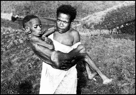 Kuru Disease - only in Papua-New Guinea in a cannibal trib