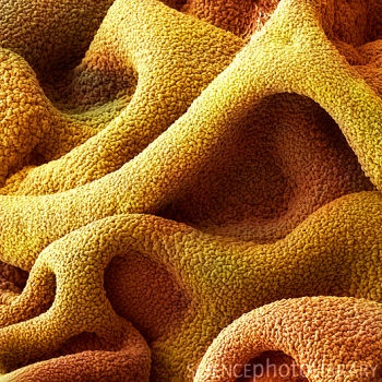 Superglue for surgical use - via electron microscope.