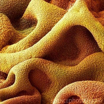 Superglue for surgical use - via electron microscope.