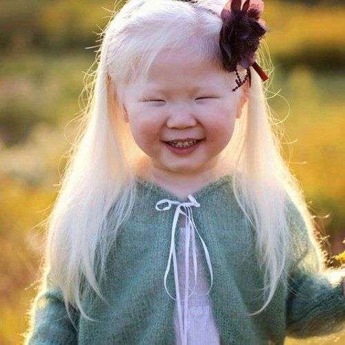 albino 17