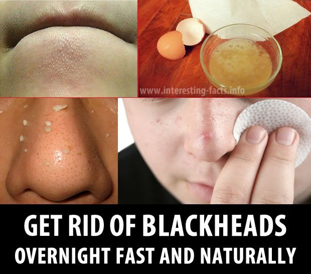 Natural Way To Get Rid Of Bacne