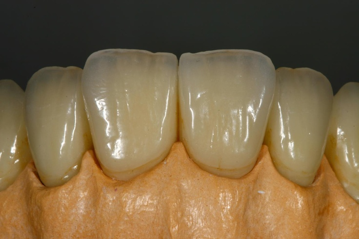 Порцеланови корони върху модела преди циментирането им в устата.