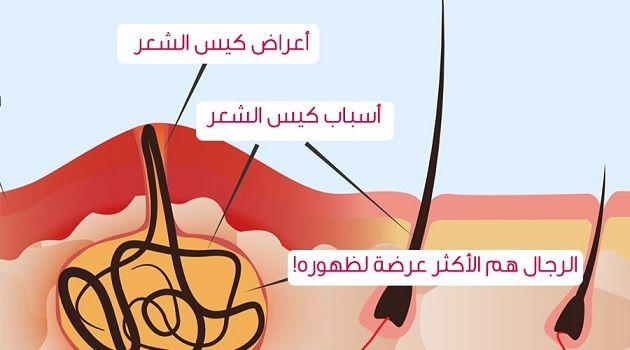 الناسور العصعصي المفتوح أعراض الإصابة بالناسور العصعصي Sinusitis Raa