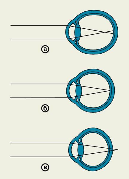 Схематическое изображения хода лучей в оптической системе глаза при различных видах клинической рефракции: а — при близорукости (задний главный фокус располагается перед сетчаткой); б — при эмметропии (задний главный фокус находится на сетчатке); в — при дальнозоркости (задний главный фокус располагается за сетчаткой)