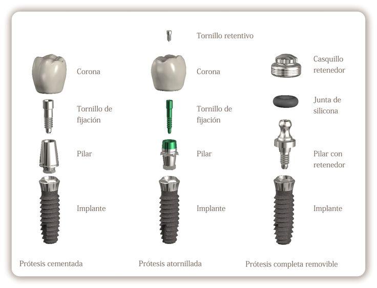 ¿ Qué son los implantes dentales?