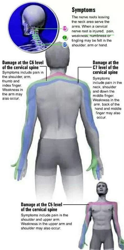 Best 25+ Radiculopathy ideas on Pinterest | Neck pain remedies, Pinched nerve treatment and ...