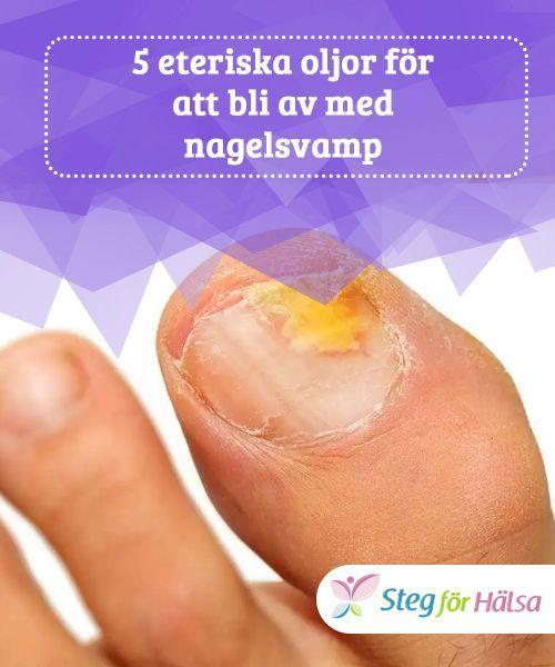 bli av med nagelsvamp