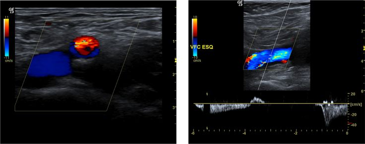 . Normal common femoral vein. The femoral vein is located medial to the common femoral vein. Spectral analysis after a Valsalva maneuver revealing a competent vein.