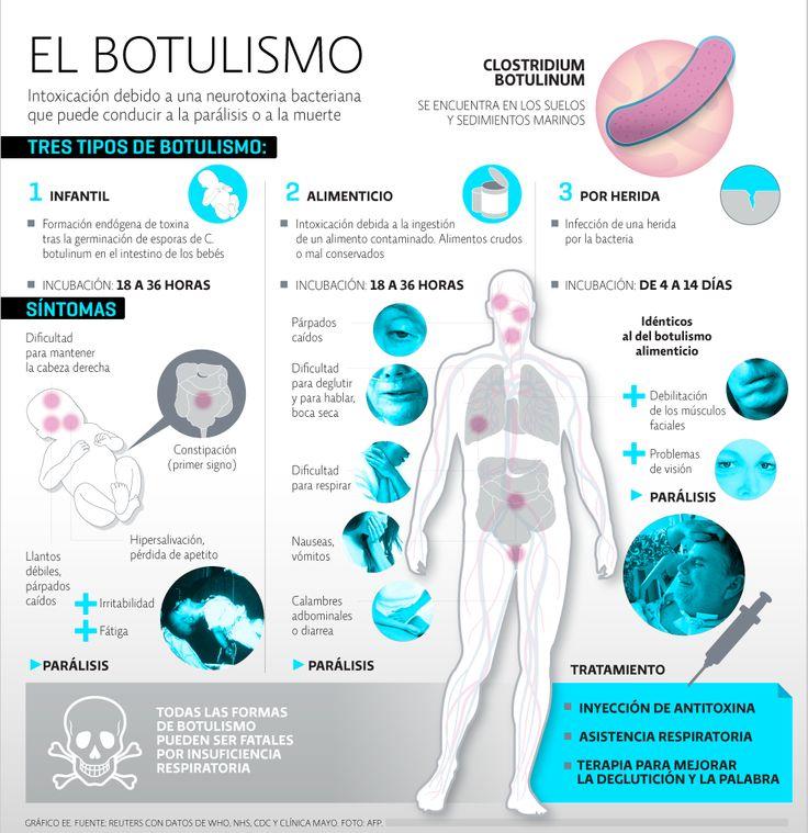 Información general del botulismo