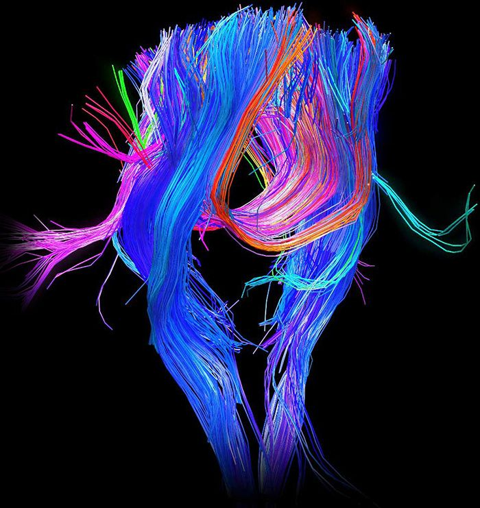 Neon Mind Patterns   The Human Connectome Project inspiration