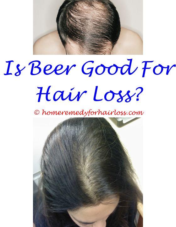 17 best Castor Oil For Hair Loss images on Pinterest   Female ...