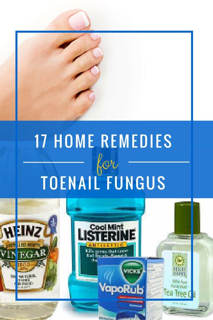 Toenail Fungus Infection Home Remedy