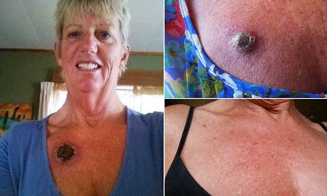 Woman claims she 'cured' skin cancer with controversial 'black salve'
