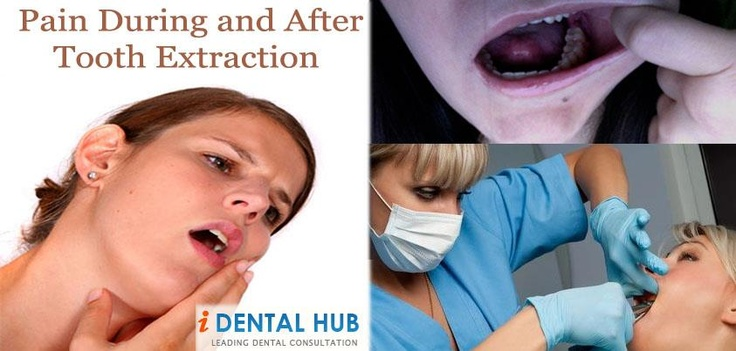 Surgical extractions are avoided in patients with high