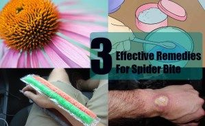 3 Effective Remedies For Spider Bite
