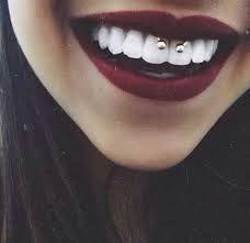piercing smile con brackets tumblr - Buscar con Google