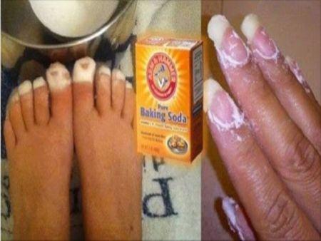 Receita Aqui está o que o bicarbonato de sódio pode fazer por sua saúde e você não sabe