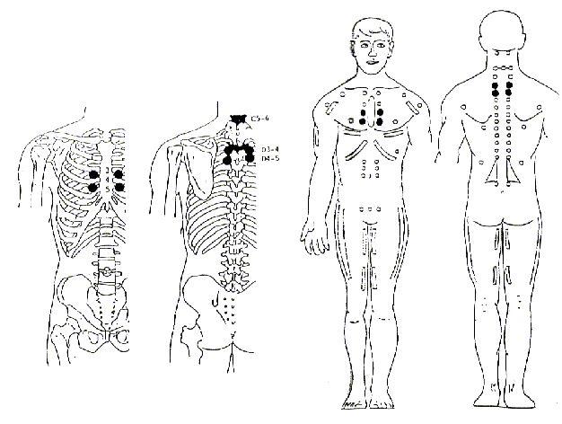 SERRATO MAYOR REFLEJO NEURO – LINFATICO  Anterior: Espacio intercostal de la 3ª/4ª/5ª costillas, junto al esternón. (Bilateral). Posterior: Espacio intertransverso entre la 3ª/4ª/5ª Dorsales PATOLOGIA  Bronquitis, pleuresía, neumonía, congestión, gripe.  Causas: Desorden pulmonar, deficiencia en vitamina C, lesión espinal en la base del cuello (especialmente si ambos brazos están débiles).  NUTRICION: Vitamina C, alfalfa, agua
