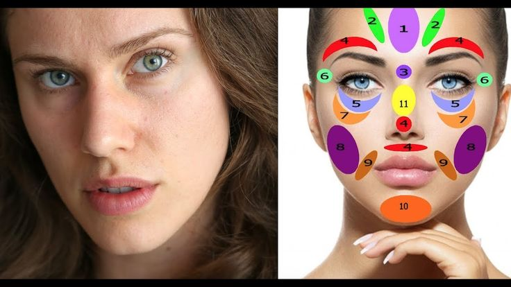 Acne Face Maps + Charts: What Are They And Do they Work?