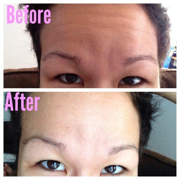 DIY 4 Ingredient Anti-Wrinkle Serum
