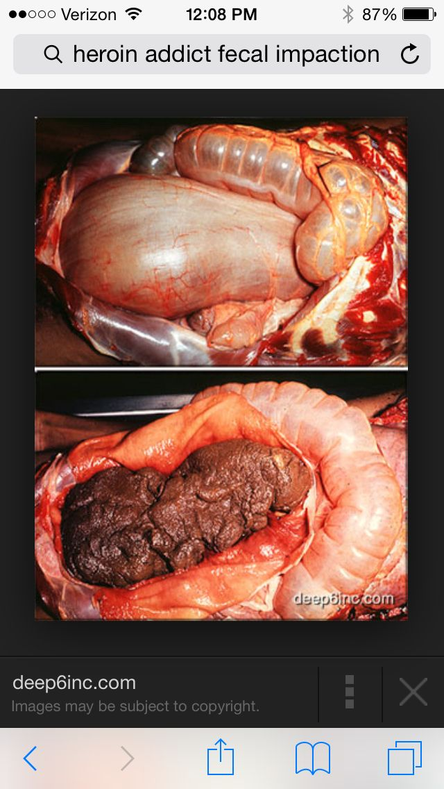 This is a 22 lb fecal impaction found during the autopsy of a heroin addict.