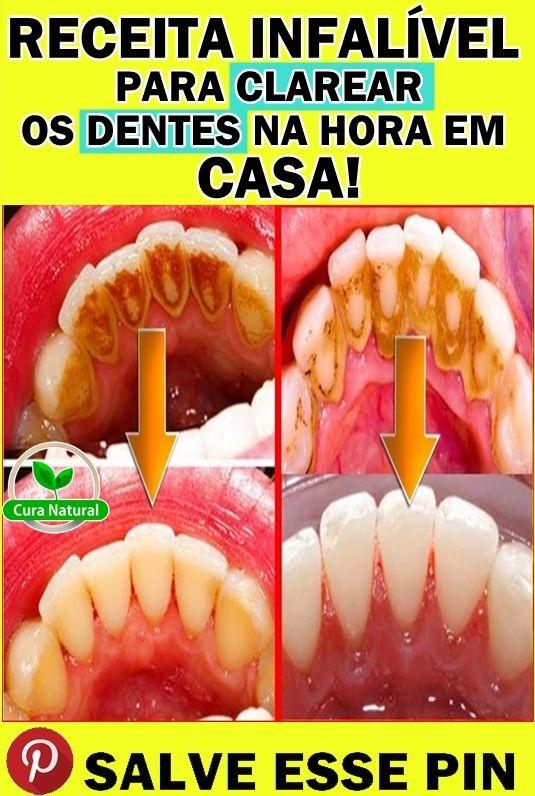 Como Remover O Tartaro Dos Dentes Com Remedios Caseiros Truques