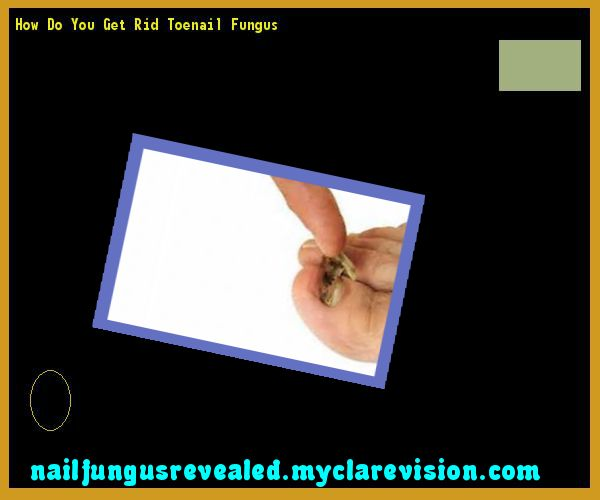 How do you get rid toenail fungus - Nail Fungus Remedy. You have nothing to lose! Visit Site Now