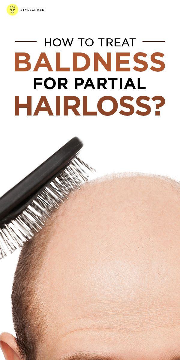 Prevention of hair loss is always better than cure in case of baldness. The earlier you start the luckier you would be. Be alert from the first signs of #hairloss. Do not allow the problem to grow beyond control. Here are some natural and as well as some medicinal remedies for treating baldness effectively.