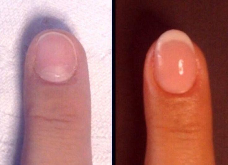 Onicofagia - Ricostruzione unghie in gel