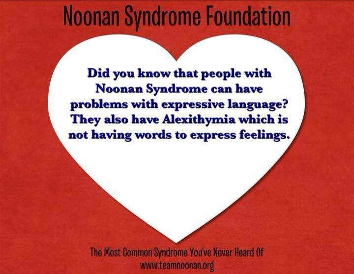 Day 20 of 28... Noonan Syndrome Fact!