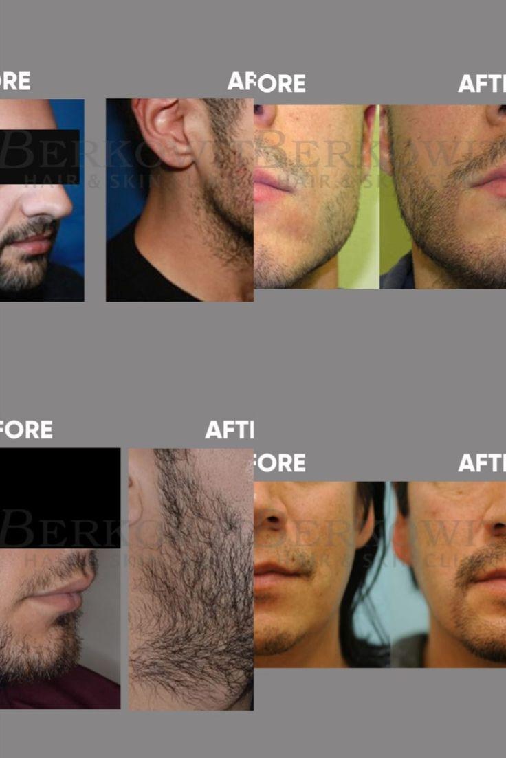 Park Art My WordPress Blog_Facial Hair Transplant Cost In India