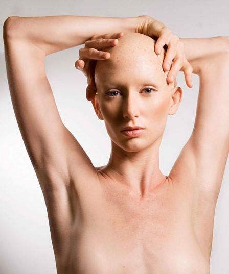Alopecia universalis nudist
