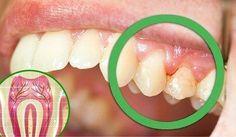6 razones por las que te duelen los dientes