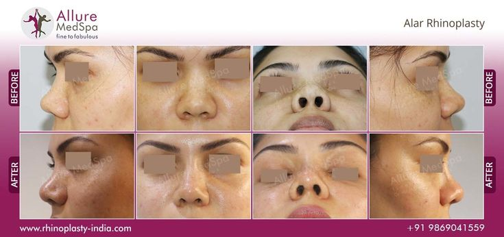 Alar Rhinoplasty is also known as Alarplasty, that designed to change the width of the nostrils to improve the look of the nose. Rhinoplasty India provides best Rhinoplasty surgery center with high qualified Affordable doctors in andheri, Mumbai India.It is Also one of the biggest ISO 2001:2008 certified clinic for both men and women