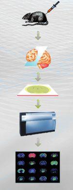 Mass spectrometry Imaging