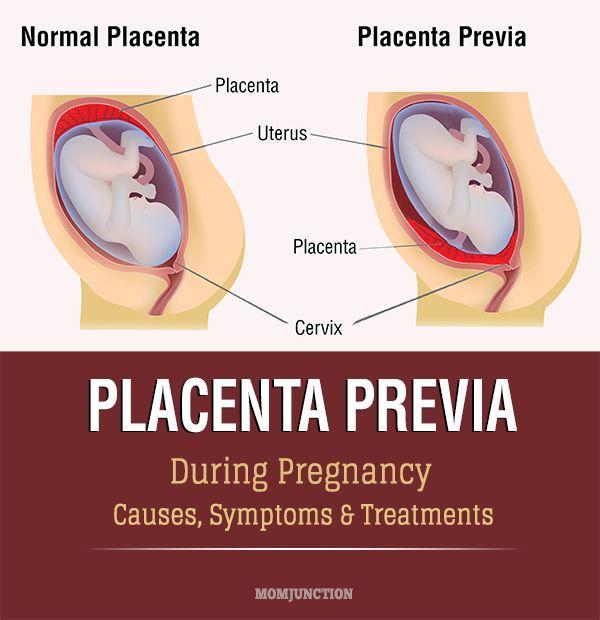 Placenta Previa- Causes, Symptoms & Treatments | The o ... - photo #43