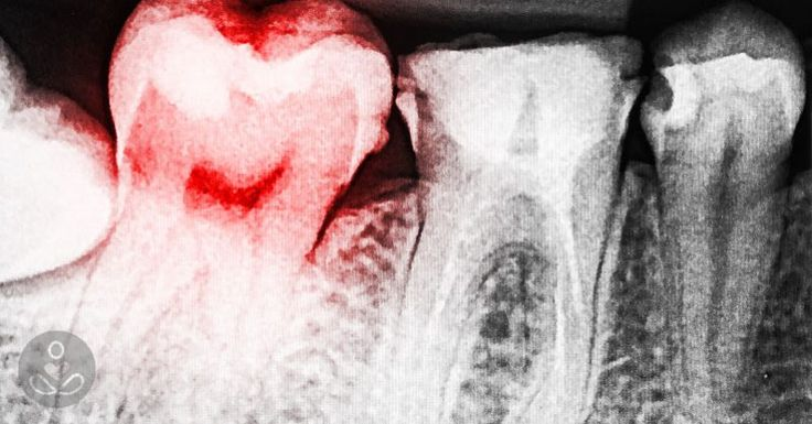 13 signs you have a toxic tooth infection and how to treat it before going to a dentist : The Hearty Soul