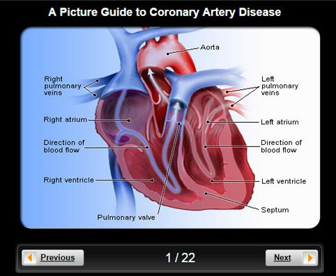 Read about heart disease (coronary artery disease) statistics, symptoms, treatment, risk factors, prevention, and more.