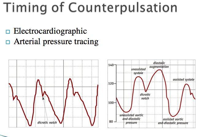 Intra-Aortic Balloon Pump Timing of counterpulsation IABP