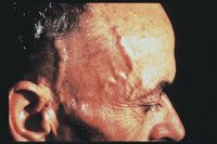 Giant Cell Arteritis  http://www.osmsgb.com/Education.aspx  #giantcellarteritis #gca #headaches #pmr