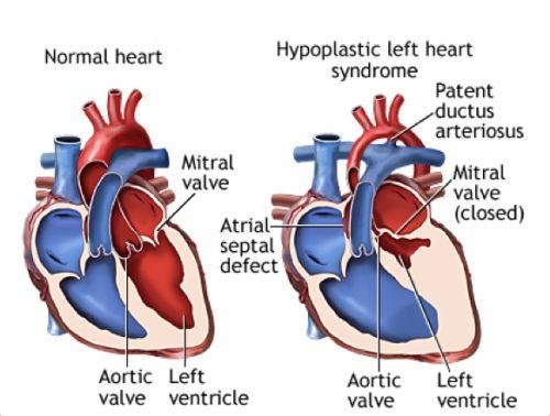 paléopathologie,momie,cardiologie,pédiatrie,hypoplasie du ventricule gauche,enfant de detmold,malformation cardiaque,cardiopathie congénitale,canal artériel,musée.