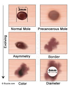 an explanation of the skin disease melanoma Mucosal melanoma authoritative facts about the skin from dermnet new zealand dermnet  we are seeking high-quality photos of skin diseases.