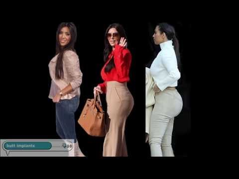 Kim Kardashian's Plastic Surgery Transformation - replace butt implants with fat injections