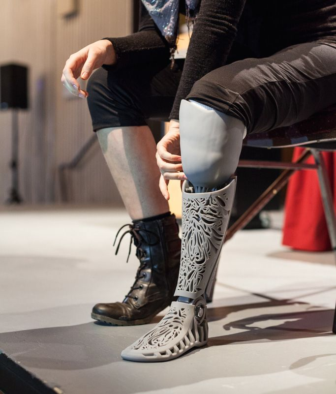 3D Printed Prosthetic...I'm sorry this person lost a leg, but if they hadn't I might never have seen their beautiful new one.