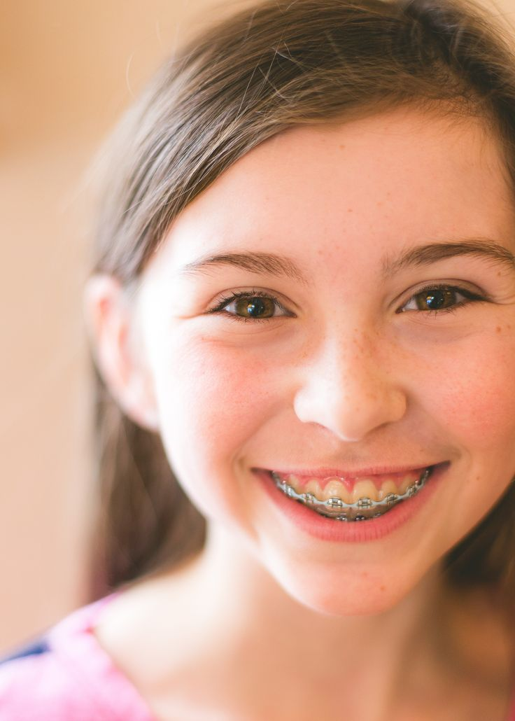 Why Do I Need Teeth Removed for my Braces Orthodontics